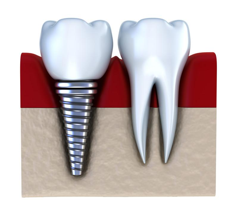 dental implants webster groves