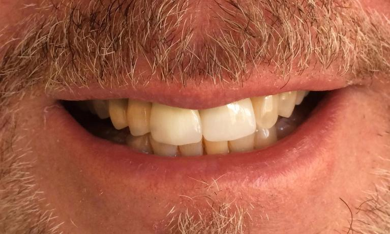 Front-Tooth-Dental-Implant-After-Image