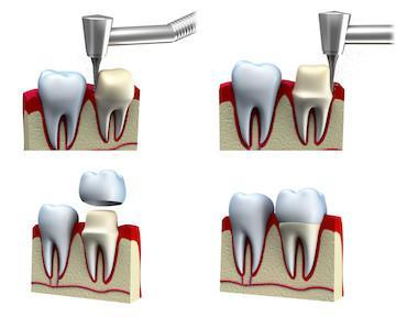 Tools shaping a tooth for dental crowns in Webster Groves MO