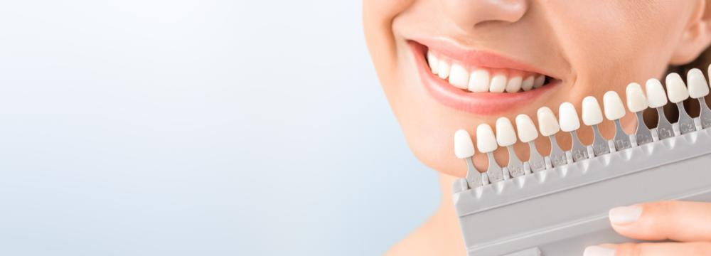 whiten teeth with fillings