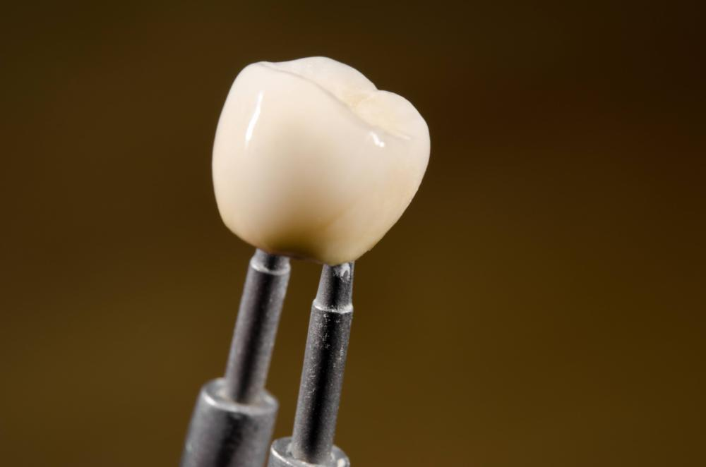 Dental Implants | Webster Groves, MO
