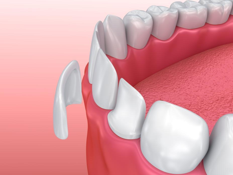 Crowns for Root Canal | Webster Groves, MO