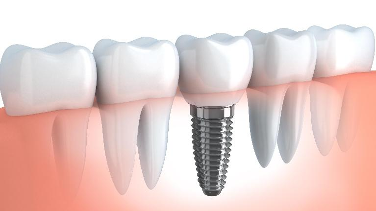 dental implants webster groves mo