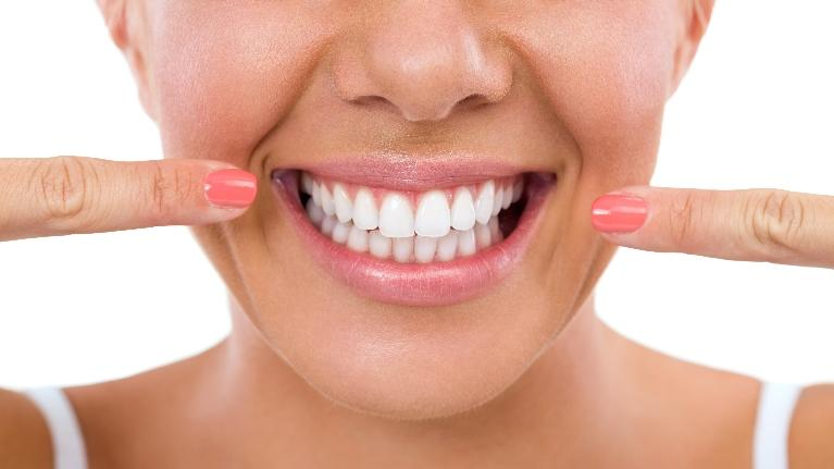 Woman Pointing To Smile | Webster Groves Dental