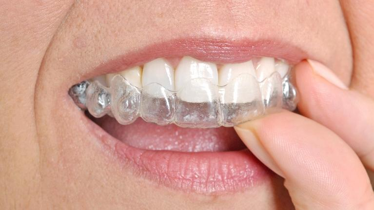 Invisalign | Webster Groves Dental | Webster Groves, MO