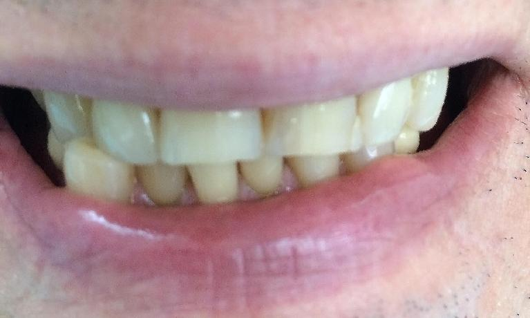 Two-front-top-teeth-crown-and-veneer-Before-Image
